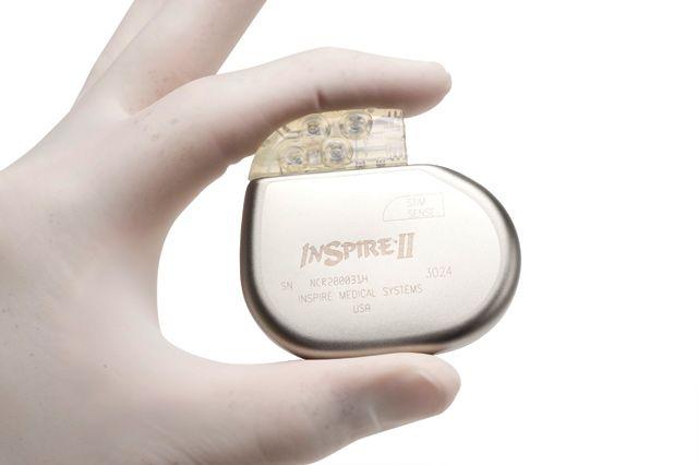 Un implant électrique pour traiter l'apnée du sommeil - Topsante.com