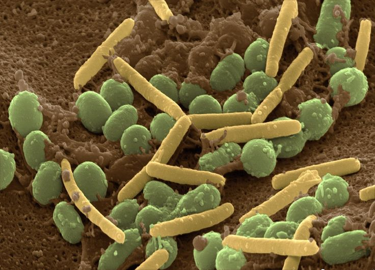57 best soil microbes images on pinterest permaculture for Soil microbiology