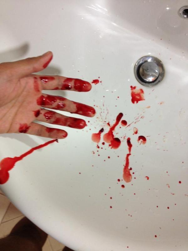 191 Qu 233 Significa So 241 Ar Con Sangre Sue 241 Os Y Simbolog 237 A