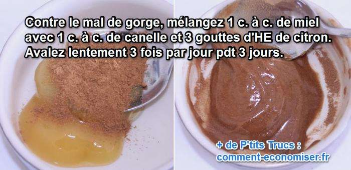 Ma grand-mère m'a conseillé un remède naturel et efficace pour soigner le mal de gorge. Il s'agit d'un remède à base de miel, de cannelle et de citron. Découvrez l'astuce ici : http://www.comment-economiser.fr/mal-a-gorge-remede-efficace.html?utm_content=bufferfb391&utm_medium=social&utm_source=pinterest.com&utm_campaign=buffer