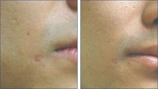 Before and after laser scar removal   http://www.laserscarremovalhq.com/laser-scar-removal-recommendations/