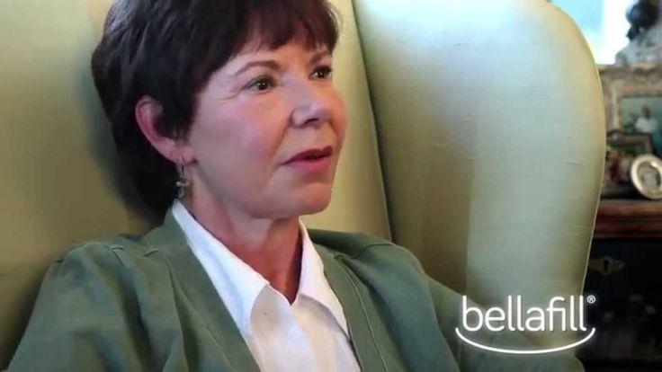 Bellafill® Patient Testimonial - PJ