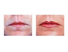 Wrinkle Fillers vs Botox