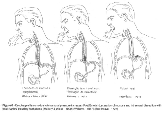 Boerhaave Syndrome has a higher incidence in the male gender, at an average of 50 years of age.11    Its predisposing factors would be alcoholism, a neurological disease, a peptic ulcer, a hiatal hernia or arterial hypertension.12 However, many sick individuals do not present any of these disorders. The classic clinical triad includes: vomiting, pain in the chest and subcutaneous emphysema.13