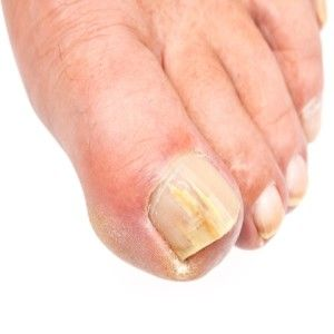 28 best images about Toenail Conditions on Pinterest ...