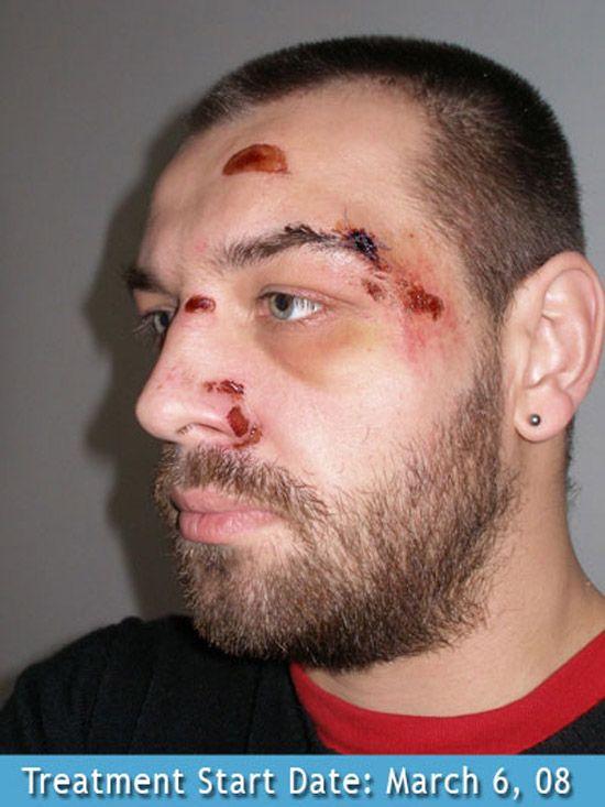 Facial Wounds 78
