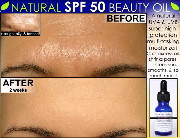 Before After Pics A Natural Spf Moisturizing Oil For Oily Skin