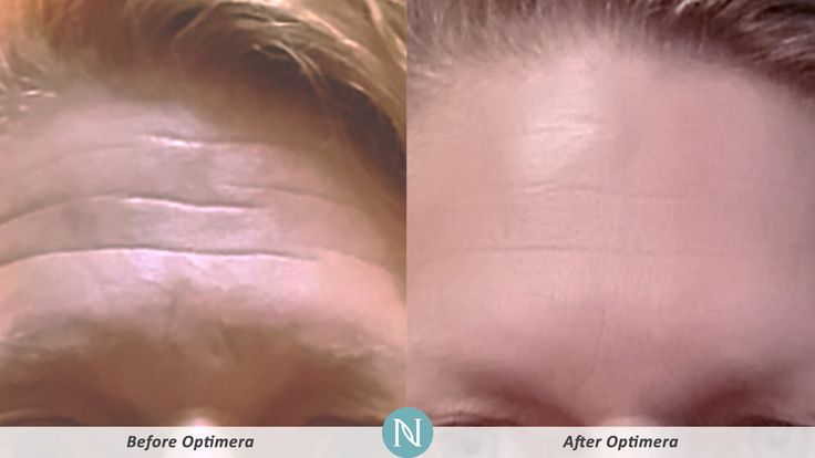 Barb's #RealResults from #Optimera are incredible!
