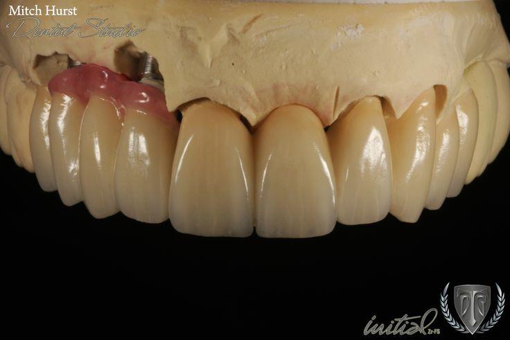 smile makeover, dental implants, beautiful, hurstdentalstudio.com