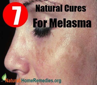 17 best images about melasma on pinterest other body parts and lighten skin naturally. Black Bedroom Furniture Sets. Home Design Ideas