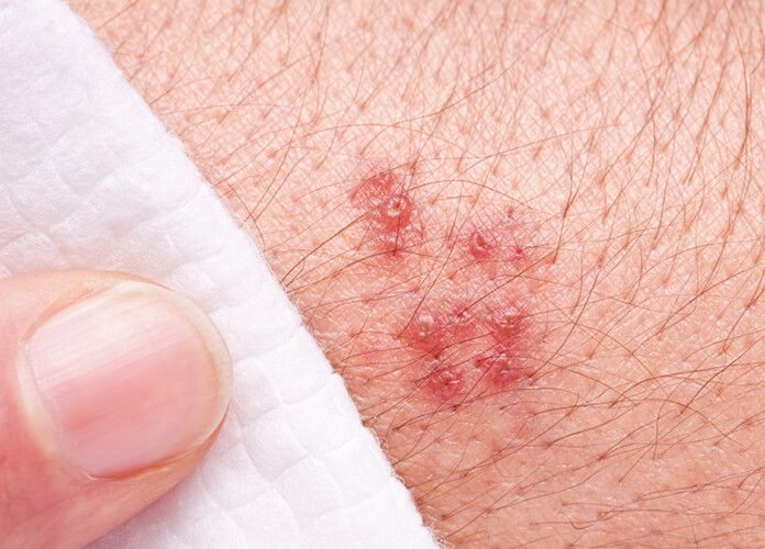 Cellulitis is an infection of the skin and the tissues just below the skin surface. Any area of the skin can be affected but the leg is the most common...