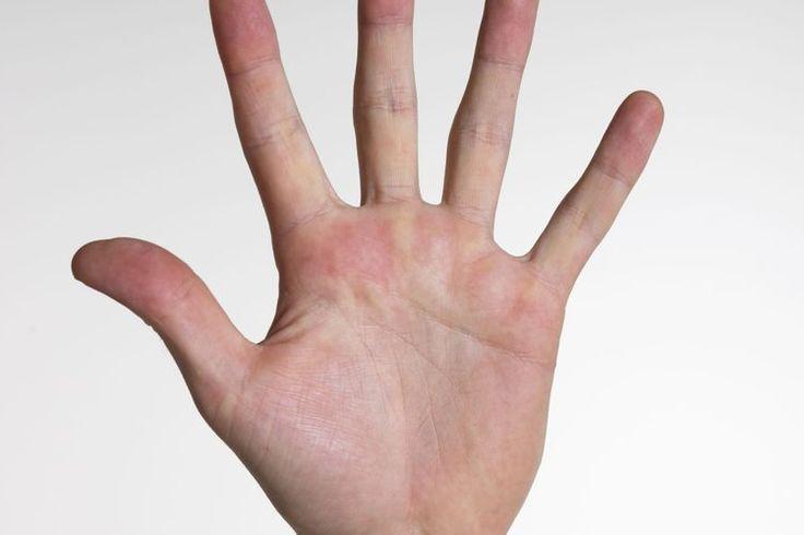¿Cuáles son los tratamientos para la psoriasis en las manos? | Muy Fitness