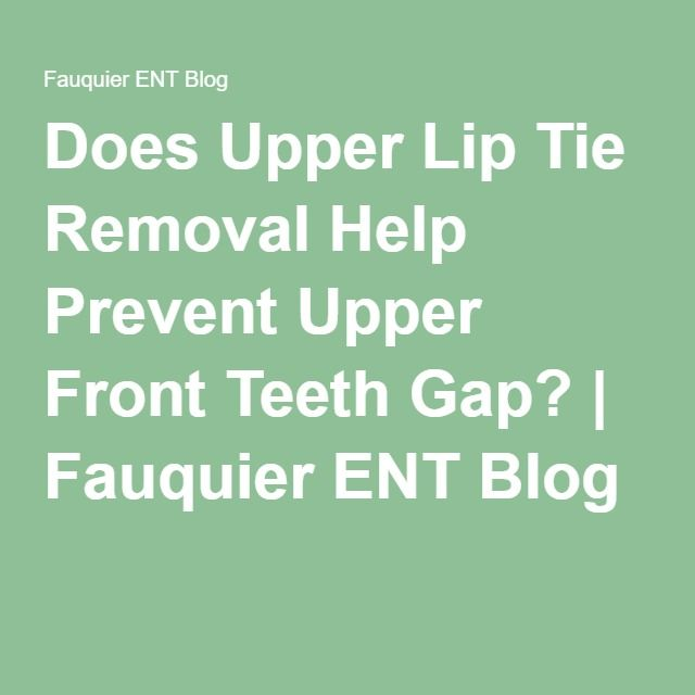 Does Upper Lip Tie Removal Help Prevent Upper Front Teeth Gap? | Fauquier ENT Blog
