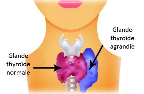 Symptômes et traitements de l'hyperthyroïdie chez les femmes - Améliore ta Santé