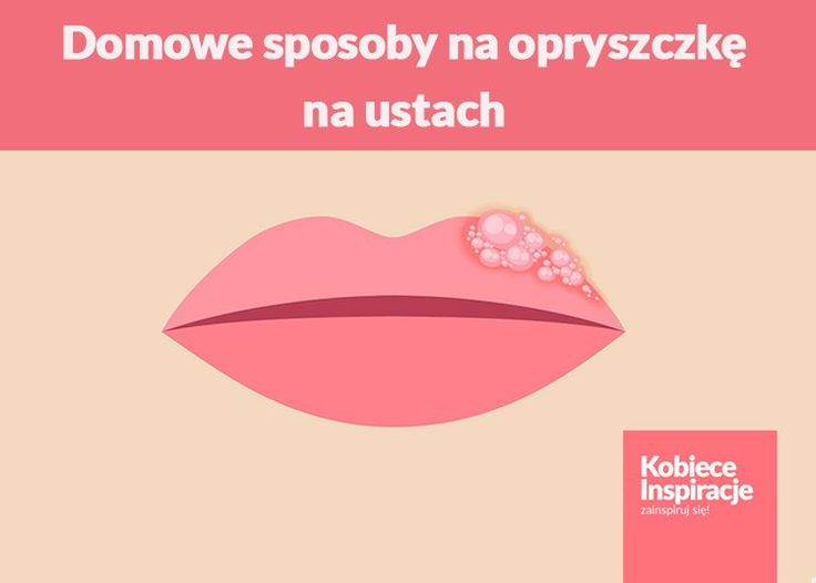 Domowe sposoby na opryszczkę na ustach - 5 SPRAWDZONYCH METOD