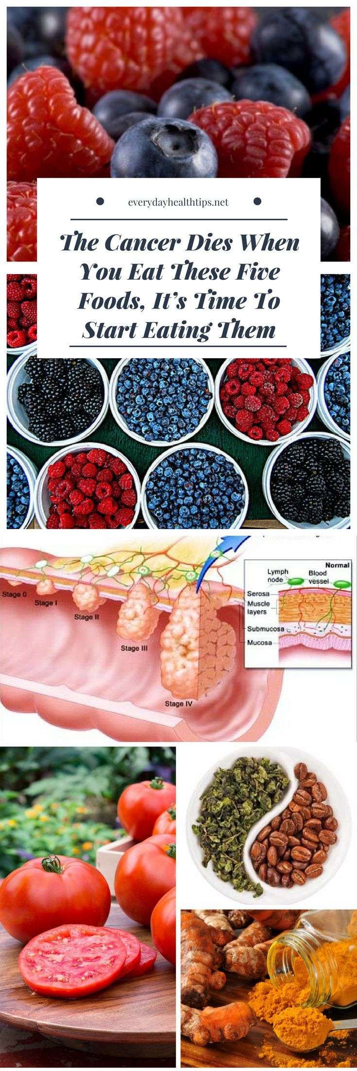 The Cancer Dies When You Eat These Five Foods, It's Time To Start Eating Them #cancer #five #food #health #natural #remedies