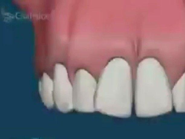 orthodontic alignment #teeth#tooth#toothless#extraction#cirugiabucal#oralsurgery#dental#dentist#dentistry#matteonegri#dentalhygiene#dentalassistant#dentalschool#dentalstudent#dentalhygiene#implant#dentist#odonto#odontogram#odontologo#odontolove#odontología#odontologia#odontogram#odontoporamor#estomatología#prosthesis#prosthodontics#ortho#braces#smile#drawing