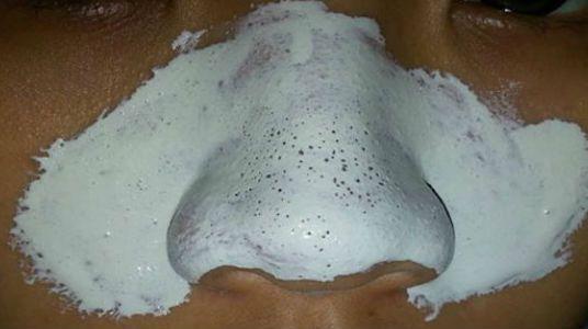 Diariamente exponemos nuestro rostro al polvo y contaminación que se van acumulando en nuestra piel y ocasiona los desagradables puntos negr...