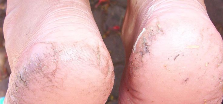Cracked heels are not just ugly but also painful. So what are the cracked heels causes? This article talks all about the causes.
