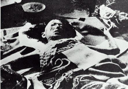 a-bomb-hiroshima-victim-1