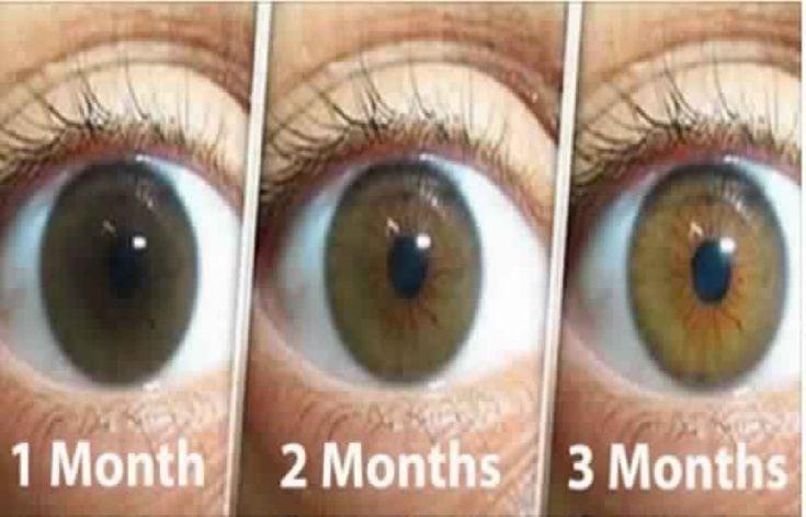 Remède Naturel Pour Nettoyer Vos Yeux Et Améliorer La Vision En Seulement 3 Mois: Voici Ce Que Vous Devez Faire Pour Eviter La Chirurgie!