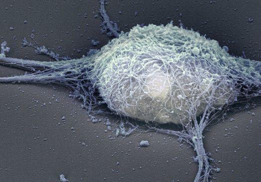 Brain Neuron.