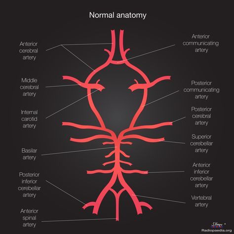 The Circle of Willis is an arterial polygon formed as the internal carotid and vertebral systems anastomose around the optic chiasm and infundibulum of the pituitary stalk in the suprasellar cistern. This communicating pathway allows equalization of blood-flow between the two sides of the brain, and permits anastomotic circulation, should a part of the circulation be occluded.    https://radiopaedia.org/articles/circle-of-willis