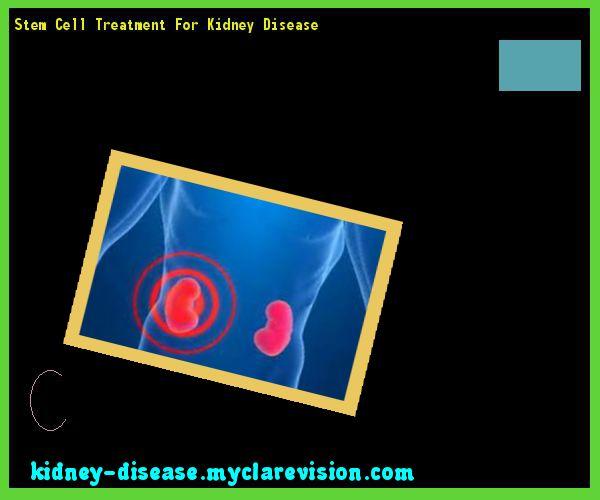 Stem Cell Treatment For Kidney Disease 103541 - Start Healing Your Kidneys Today!