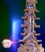 Next step.  While spinal cord stimulation does not work for everyone, most patients with chronic pain who qualify for a spinal cord stimulator report a 50 to 70% reduction in their pain, as well as an increased ability to participate in normal family and work activities.
