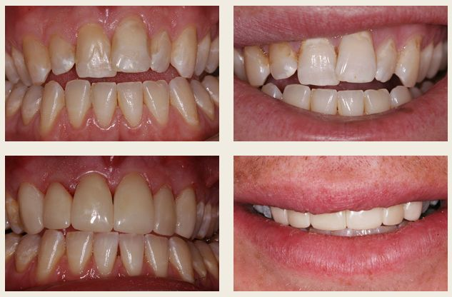Sean's situation was so interesting I've put in extra pictures. Not only was he not satisfied with his smile but when he closed his teeth together only the very back ones touched. Through a combination of Invisalign clear braces, reshaping, whitening and veneers we were not only able to give Sean the great smile he wanted but also 90% improvement in the function of his teeth.
