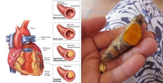 I benefici della curcuma per il cuore | Rimedio Naturale