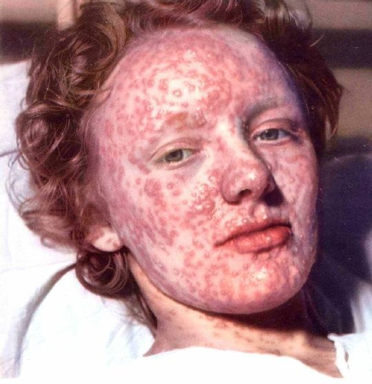 Plz Check Top 10 Deadliest Diseases Ever Known