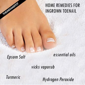 Treating ingrown toenails is a tricky task as they get infected pretty fast. Your search for some effective natural solutions for ingrown toe nails can now be put to rest. We have the good news for you. There exists a huge gift collection from Mother Nature from which you can pick the one of your