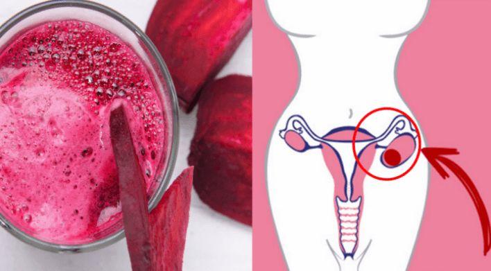 Problémy s cystami nebo fibromů na děloze a vaječnících trápí velmi mnoho žen. Řešením bývá často operace, případně užívání léků s různými vedlejšími účinky. Dnes vám prozradíme recept na jeden extra účinný, avšak čistě přírodní džus, který si s většinou podobných problémů dokáže hravě poradit. Kromě cyst, myomů a fibromů je velmi vhodný i na …