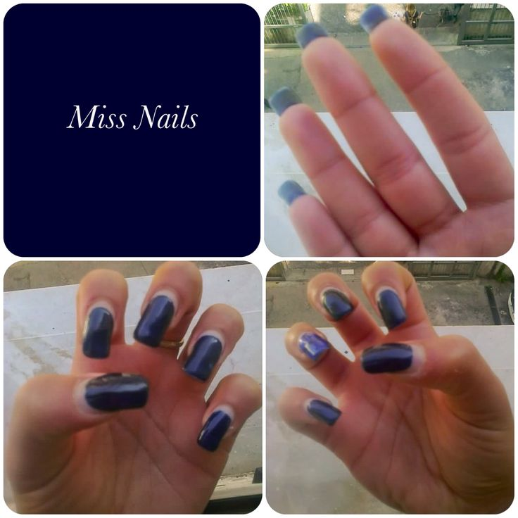 Nail After 1 Month