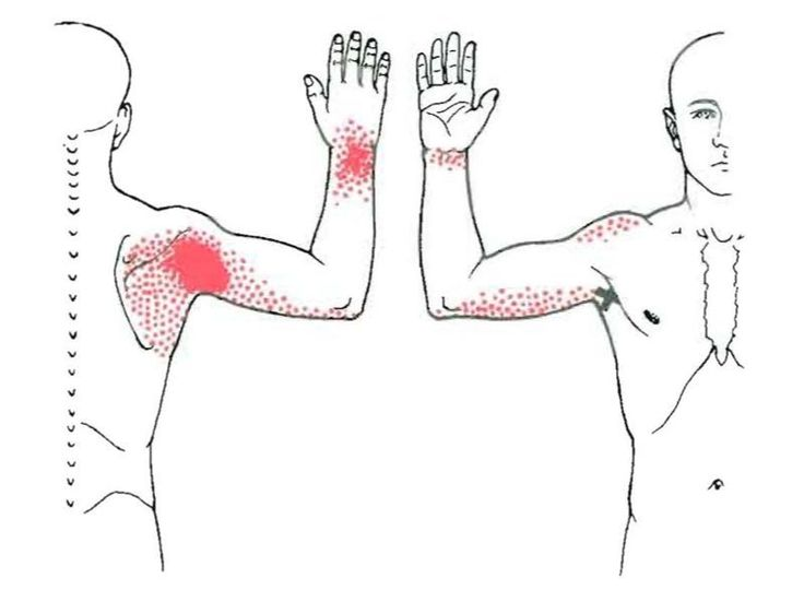 Travell_subscapularis trigger points