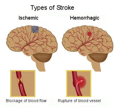 cva ischemic stoke Get information from the cdc about the main types of strokes: ischemic stroke, hemorrhagic stroke, and tia (also called a mini-stroke.