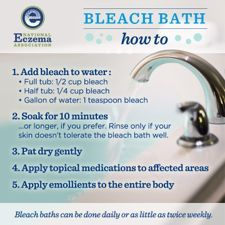 Bleach bath