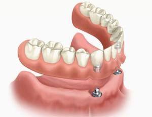 Bij Prothista kunt u terecht voor advies over en het laten aanmeten van een kunstgebit op implantaten. Vanuit onze praktijk werken wij nauw samen met de afdeling kaakchirurgie in het Zaans Medisch Centrum