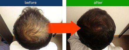 ●43歳男性:頭頂部薄毛 【脱毛歴10年・煙草吸う】  【以前の悩み】 脱毛の進行  【スーパースカルプを選んだ理由】 知人からの紹介  【発毛実感】 ・髪の毛にハリとコシが出た感じがする ・周囲の方(特に家族)から髪のボリュームアップを評価された。 ・発毛だけでなく、生活環境も改善できたので健康的になった。  【薄毛や抜け毛・AGAで悩んでいる方へ一言】 ・一人で悩まず、先ずは体験に行って欲しい。 ・発毛が実感できれば、必ず人と接することが楽しくなります。byHEAD CARE/スーパースカルプ六本木