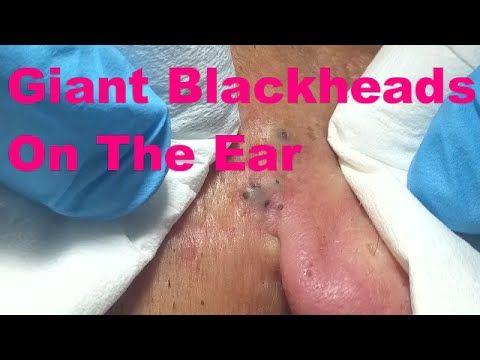 Giant Blackheads On The Ear - Part I - - YouTube ...