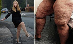 Solihull's Faye Rodgers-Harris has 12 LITRES of fat sucked from her legs   Daily Mail Online