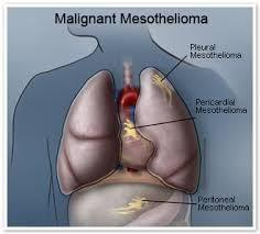 Mesothelioma cancer Attorney