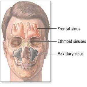 Home Remedies For Sinus - Natural Treatments & Cure For Sinus   Find Home Remedy