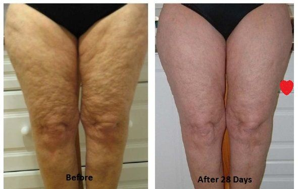 Methods of Cellulite Removal