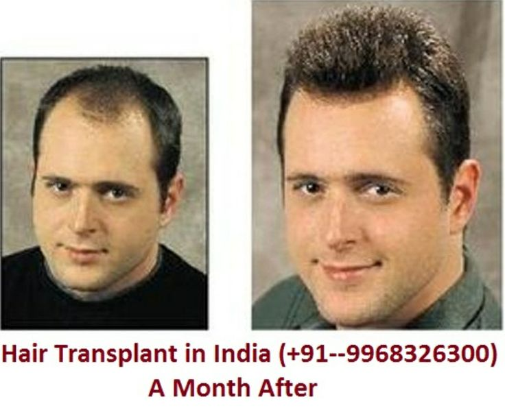 17 best hair transplant images on pinterest hair loss treatment rajat guptais best transplant in delhi india and well known for cheap and best hair hair implant hair loss treatment and hair weaving pmusecretfo Gallery