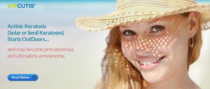 Healthy Skin Cream For Actinic Keratosis & Hard To Heal Skin