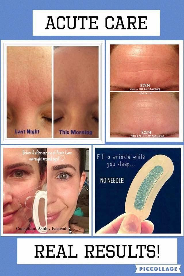 Fill a wrinkle while you sleep! Rodan and Fields acute care! Amazing stuff! Message me for details! Or take a look for yourself HTTPS://krasher.myrandf.com