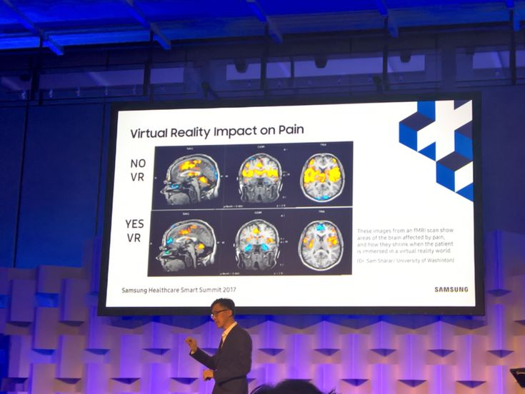 Samsung partners with St Vincent's Hospital for pain management with VR