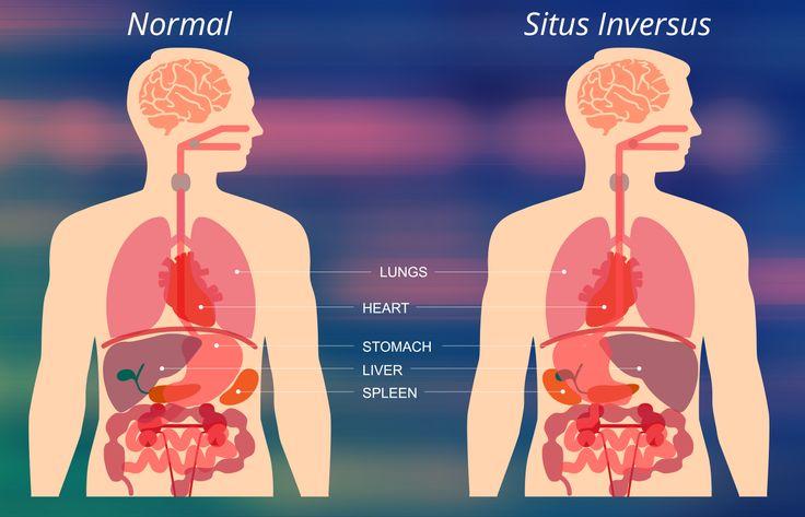 El situs inversus es una condición congénita en la cual los órganos viscerales se invierten o se reflejan de sus posiciones normales. La posición normal de los órganos internos se conoce como situs solitus mientras que el situs inversus es generalmente la imagen en espejo de los órganos. La mayoría de las personas con situs …